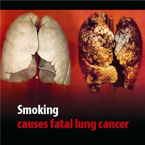 causes of smoking Fifty years ago, 424 percent of us adults smoked since then  here are five  reasons for the dramatic decline of smoking in american life 1.